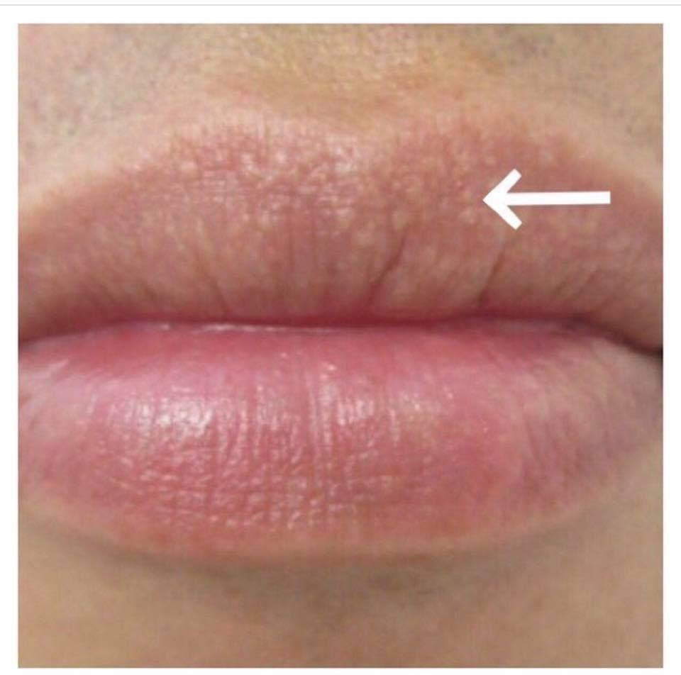 Fordyce spots on lips