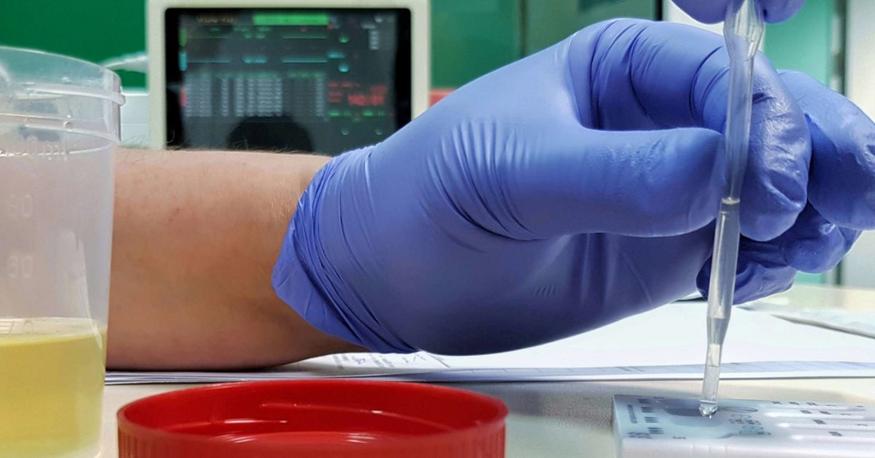 urine lab confirmation image
