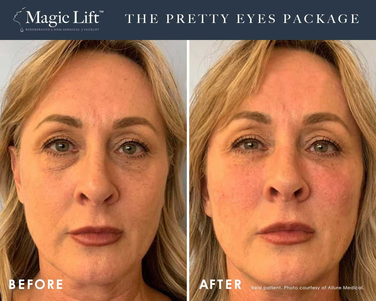 Before and After Magic Lift (Non-Surgical Face Lift) treatment #2