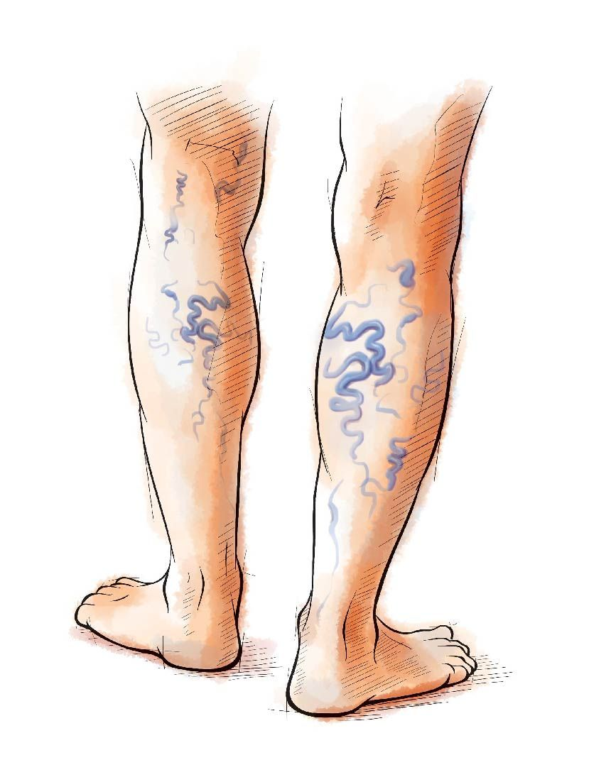 person with vein disease drawing