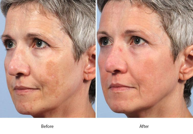 Before and After Fraxel Laser for Skin Resurfacing treatment #2