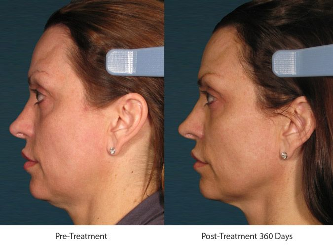 Before and After Ultherapy Skin Tightening Treatment treatment #2