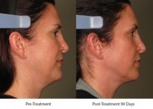 Before and After Ultherapy Skin Tightening Treatment treatment #3