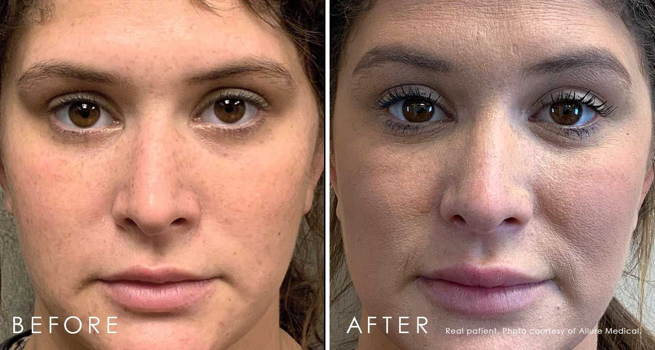 xeomin brow lift before and after