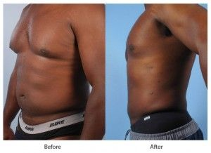 Before and After Liposuction for Men treatment #2