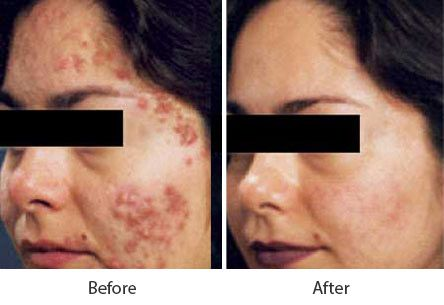 Before and After Acne Treatment treatment #3