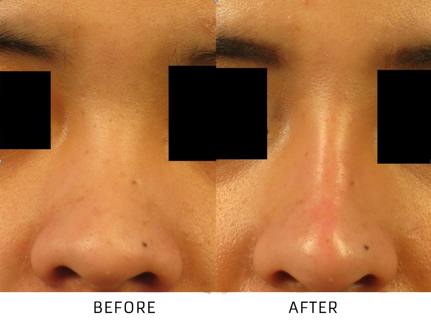 Before and After Non Surgical Nose Job treatment #3