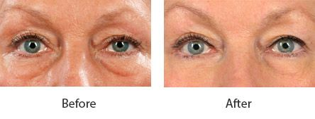 Before and After Cosmetic Eyelid Surgery treatment #3