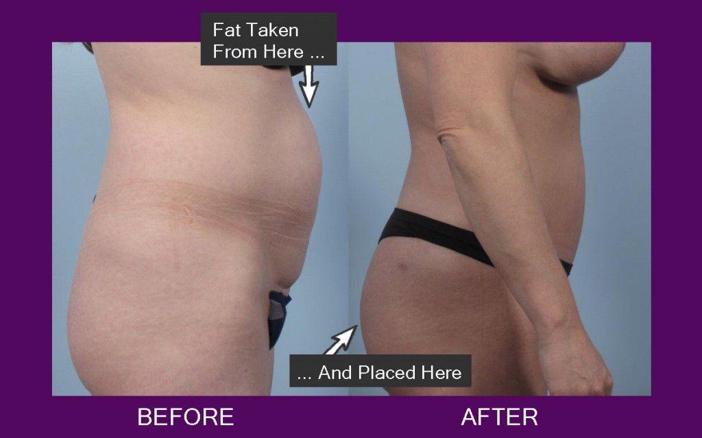 fat transfer buttocks