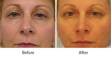 Before and After Fat Transfer Procedures treatment #3