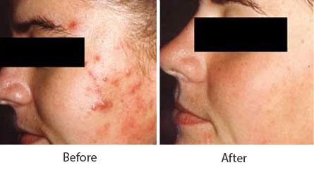 Before and After Acne Treatment treatment #2
