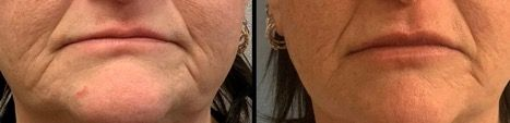 before and after of woman's lips