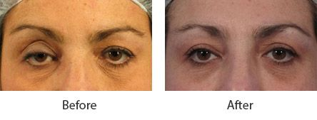 Before and After Cosmetic Eyelid Surgery treatment #4