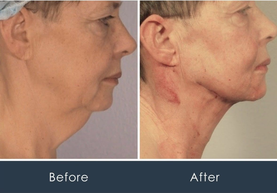 scarless neck lift surgery before and after