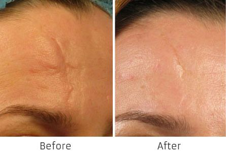 Before and After Fraxel Laser for Skin Resurfacing treatment #1