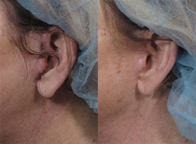 facelift near ears