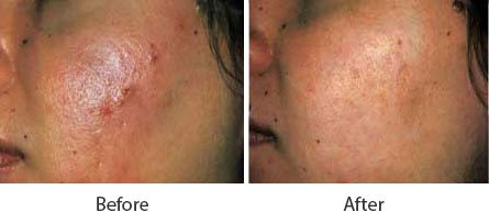 Before and After Acne Treatment treatment #4