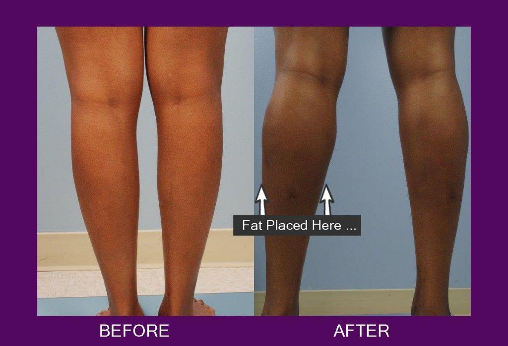 fat transfer legs