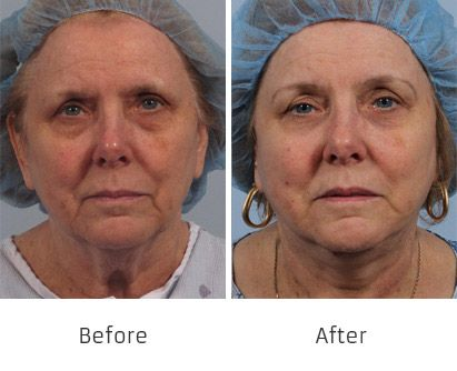 Before and After Allure Lift treatment #4