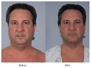 Before and After Liposuction for Men treatment #3