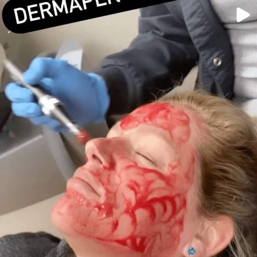 dermapen treatment  being performed on a patient