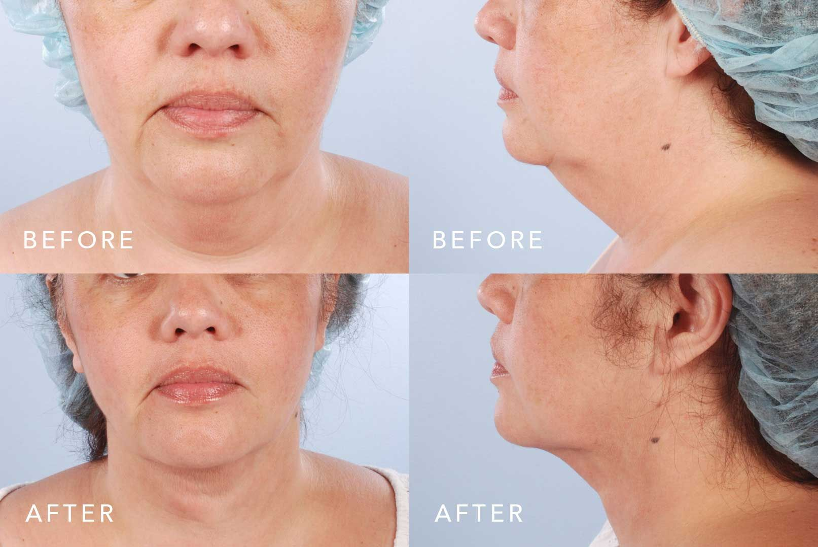 Before and After Scarless Neck Lift treatment #1