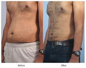 Before and After Liposuction for Men treatment #4