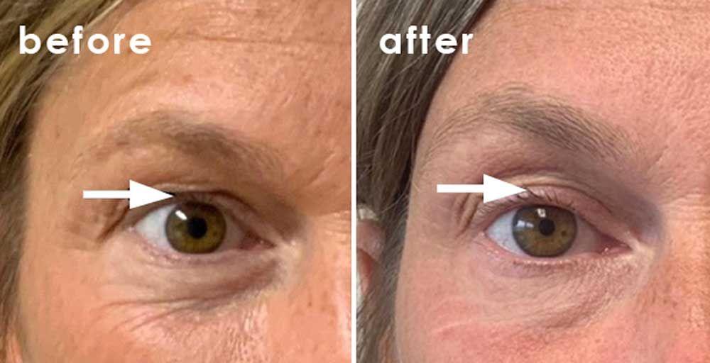 botox lifting wrinkles