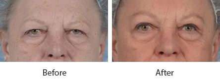 Before and After Eyebrow Lift Surgery treatment #2