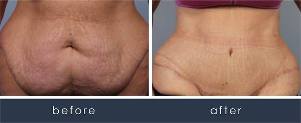 Before and After CombiTuck Procedure/Tummy Tuck  treatment #2