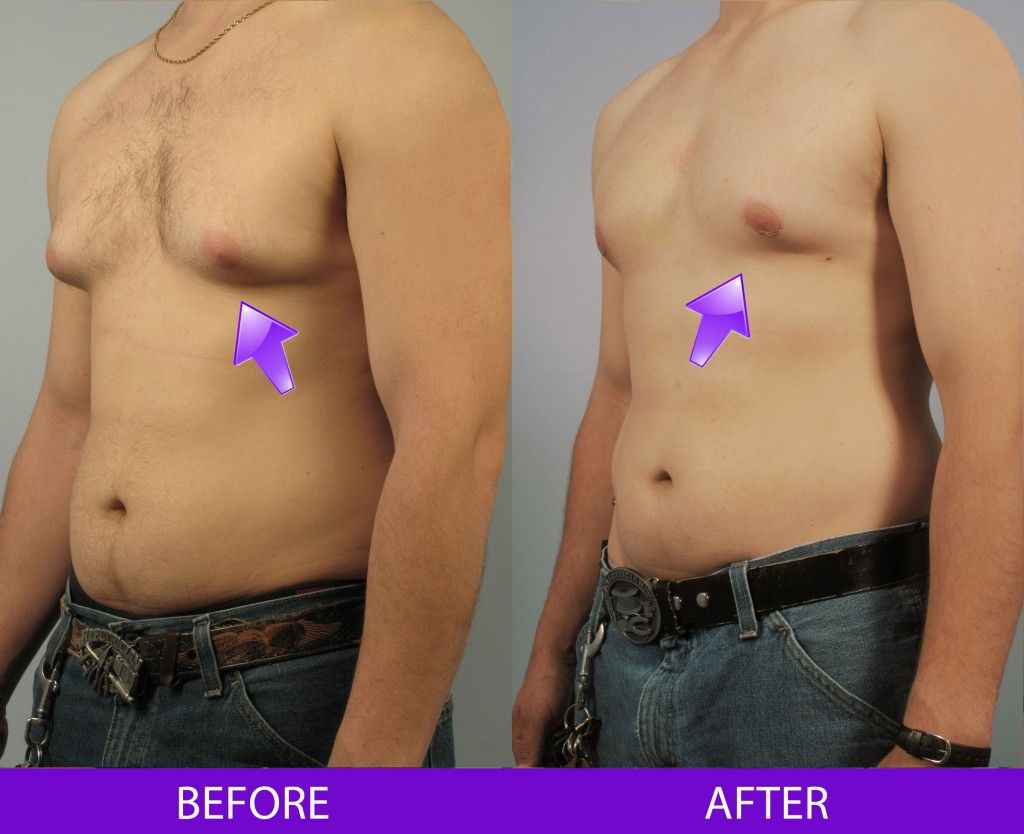 Before and After Breast Reduction for Men treatment #4