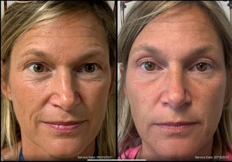 botox to fix wrinkles