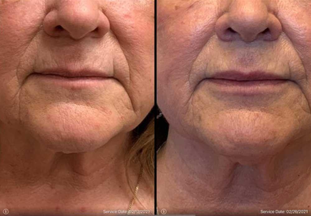 lip enhancement 2 syringes