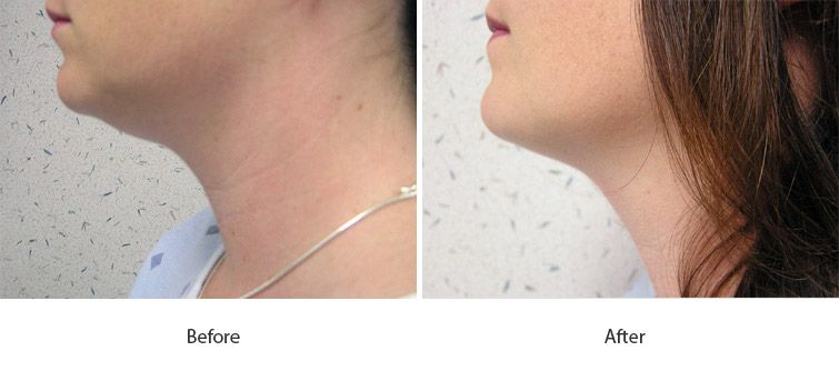 Before and After Cellulite Injections treatment #3