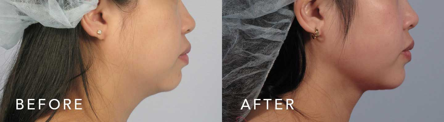 Before and After Scarless Neck Lift treatment #4