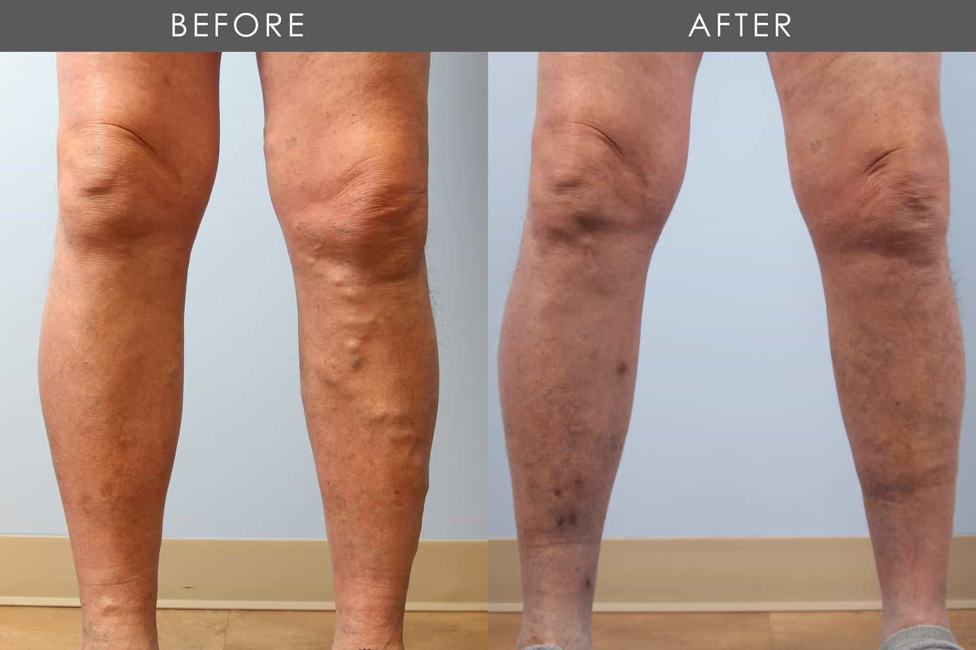 Before and After Varicose Vein Treatment treatment #3