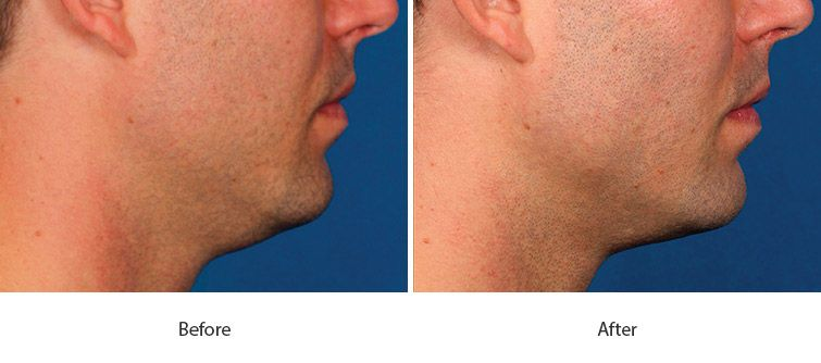 Before and After Kybella Injections treatment #2
