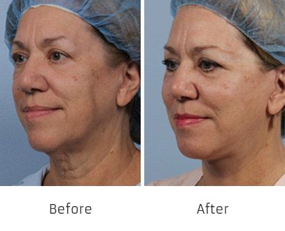 Before and After Allure Lift treatment #1