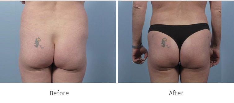 Before and After Brazilian Butt Lift Surgery treatment #4