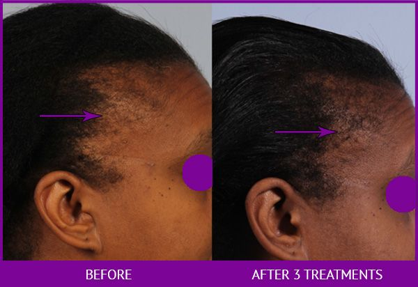 Before and After Platelet Rich Plasma (PRP) for Hair Restoration treatment #2