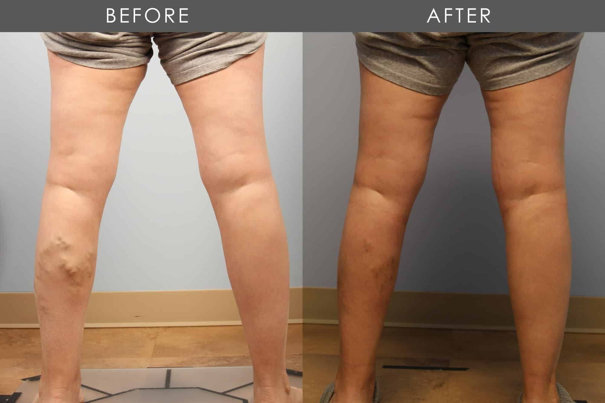 Before and After Varicose Vein Treatment treatment #1