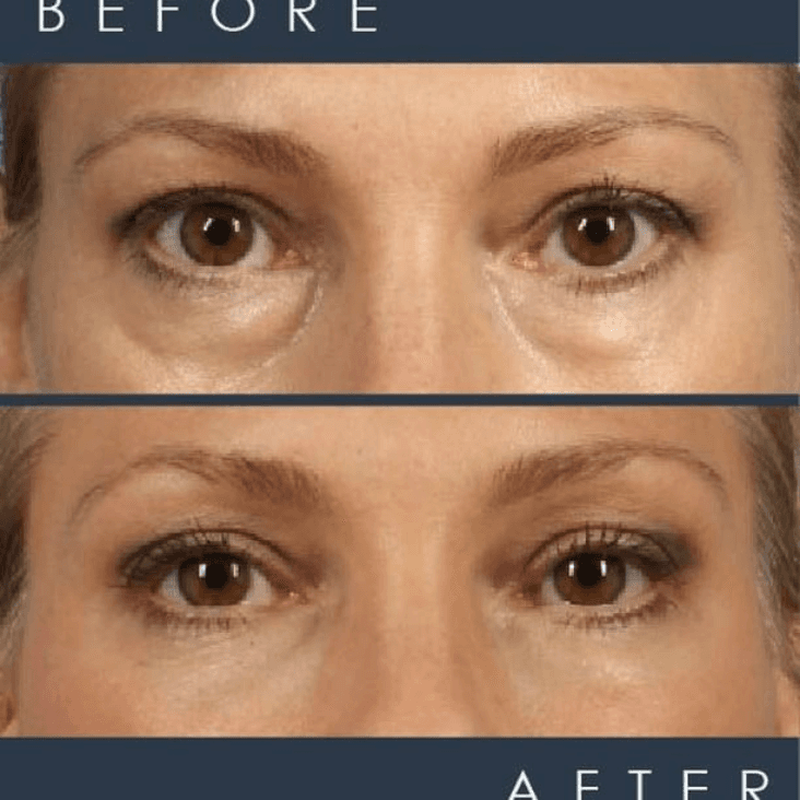 before and after photo of magic lift pretty eyes package