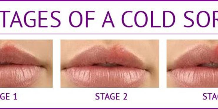 stages of a cold sore