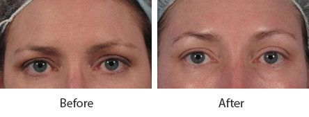 Before and After Cosmetic Eyelid Surgery treatment #1