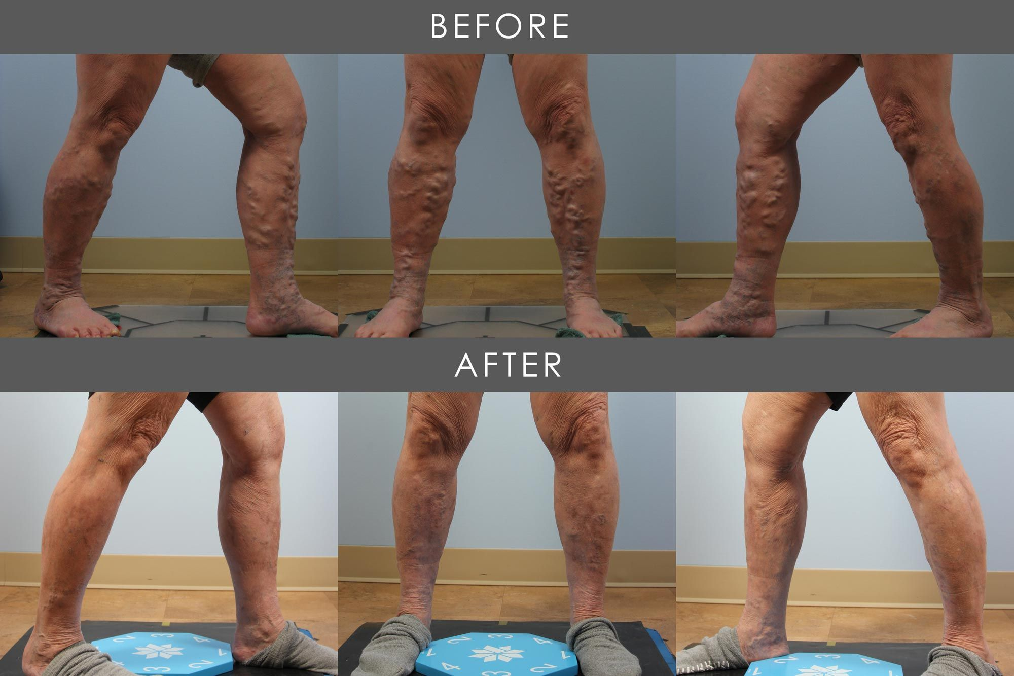 Before and After Varicose Vein Treatment treatment #4