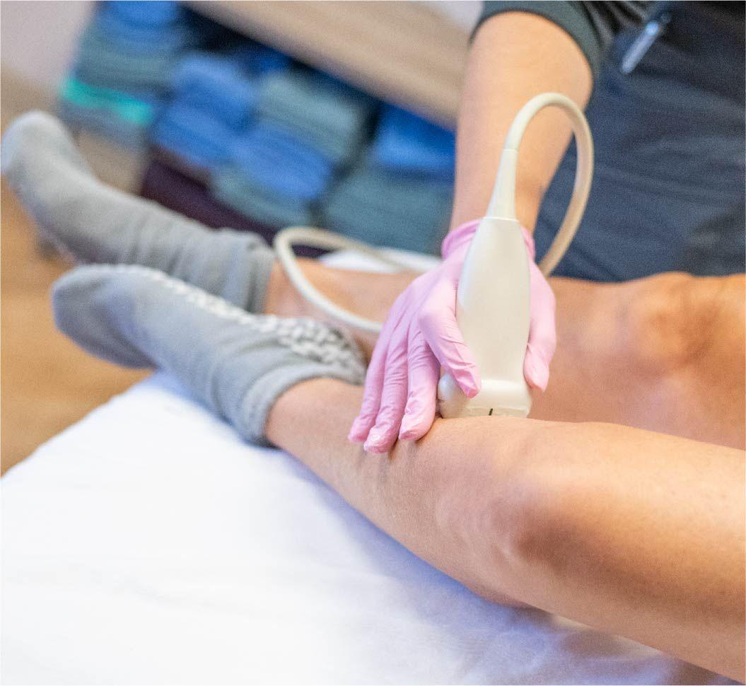 leg ultrasound