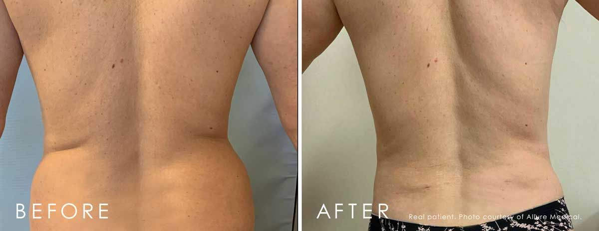 Before and After Lipodissolve treatment #4