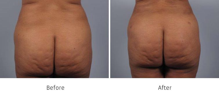 Before and After Brazilian Butt Lift Surgery treatment #2