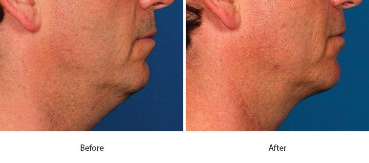 Before and After Kybella Injections treatment #3