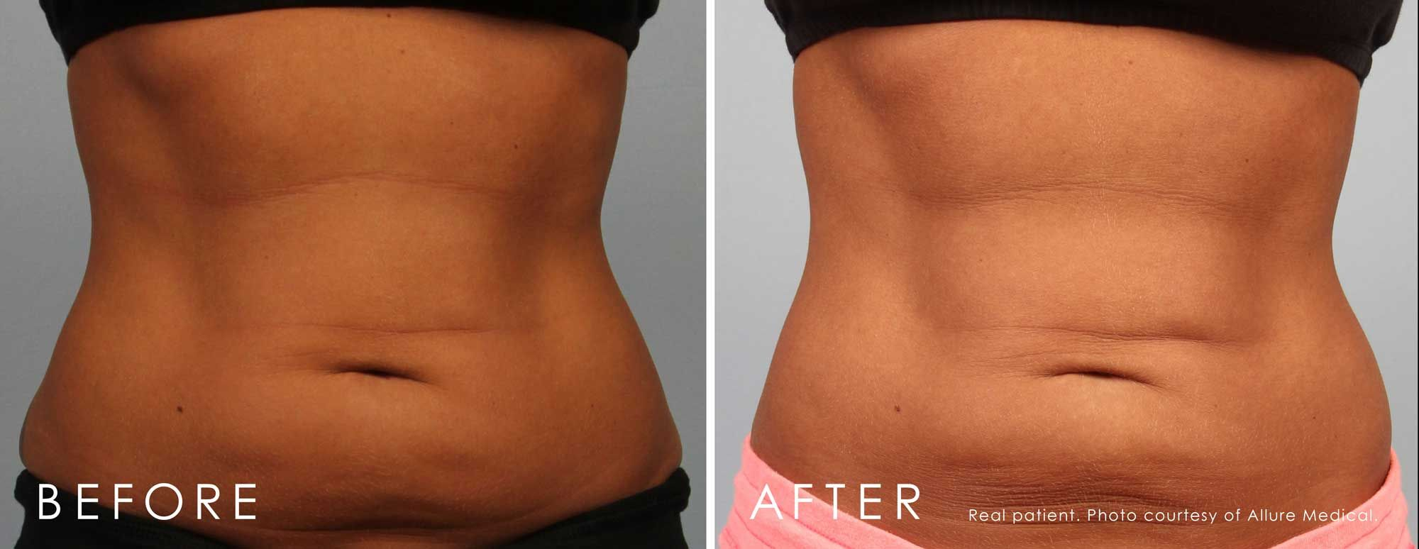 Before and After CoolSculpting® treatment #3